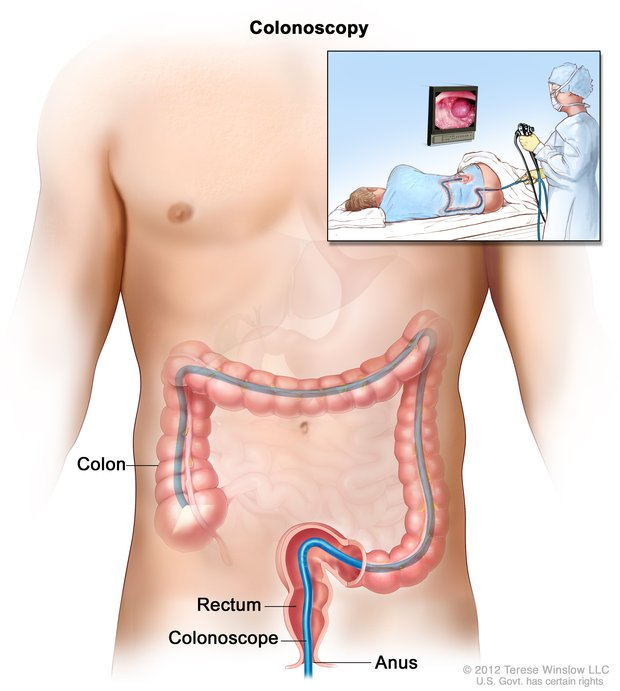 Drawing of a torso and a colonoscope in the anus, rectum, and colon. An inset shows a health professional performing a colonoscopy and a patient on his side.