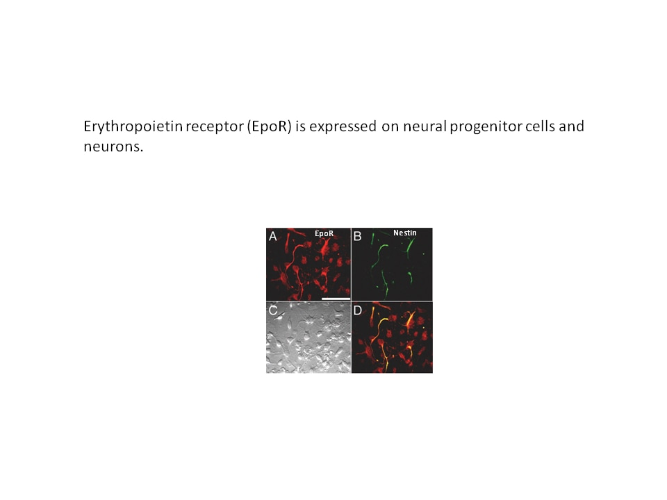 Photo of Erythropoietin receptor expression in neural cells