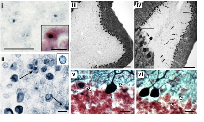 Photo of Fragile X premutation mice show neurodegeneration similar to humans with Fragile X-associated tremor and ataxia syndrome