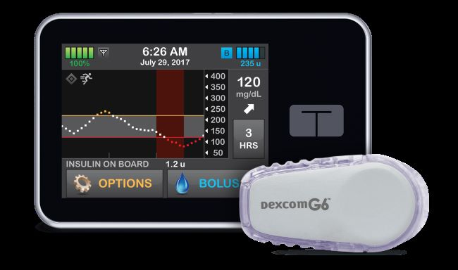 Continuous glucose monitor and insulin pump