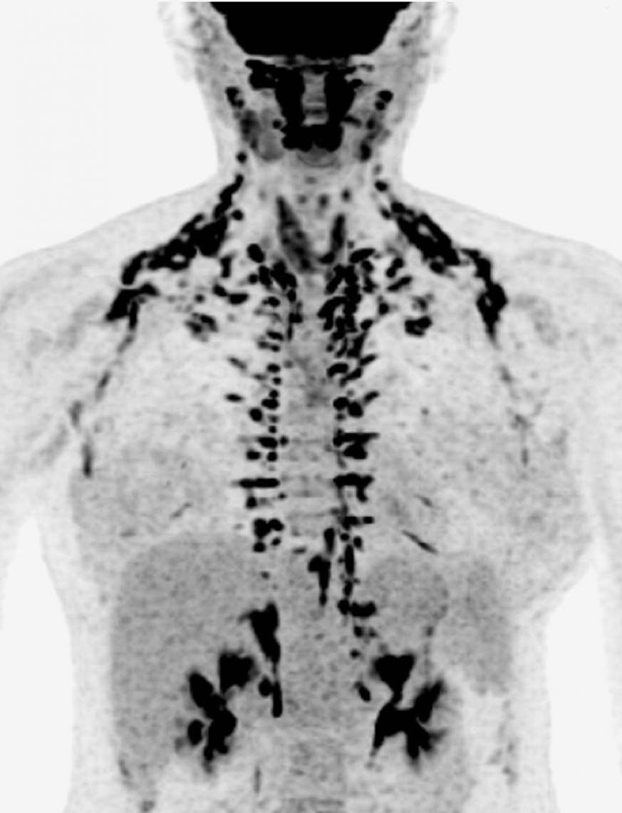 Image highlighting human brown adipose tissue, or brown fat