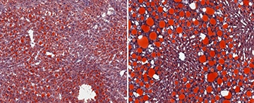 Dual image, left shows steatosis (fat build-up, red) in the liver of a normal mouse fed a high-fat diet, the right shows markedly higher steatosis in the liver of a mouse lacking IFN-gamma fed a high-fat diet.