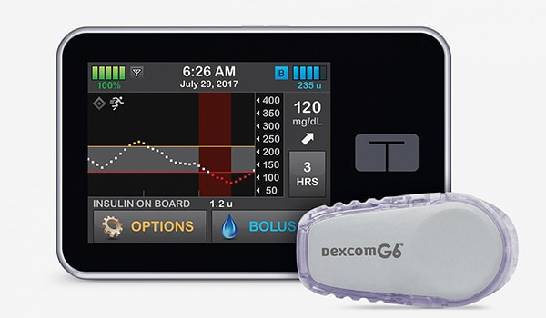 Artificial pancreas system