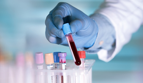 Lab technician with a blood sample