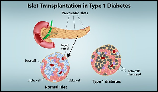 "Faded blue background with title, ""Islet Transplantation in Type 1 Diabetes"". Image of Pancreas with pancreatic islets emphasized and an arrow pointing to a normal islet microscopic image on the left side. The normal islet features the beta, alpha and delta cells as well as the blood vessels in blue, light red, purple and dark red colors, respectively. Next to this image is another microscopic image of type 1 diabetes in an islet cell. This image shows the beta cells destroyed in a gray color."