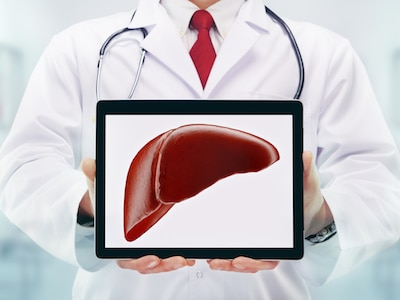 Doctor holding an image of a liver.