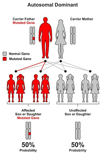 Illustration of autosomal dominant pattern. Children of a parent with the disease gene have a 50% chance of not having the disease, and a 50% chance of having the disease.