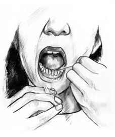 Drawing of a woman flossing her lower teeth.