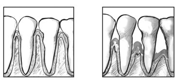 Drawing of a close-up view of teeth and healthy gums, and a drawing of a close-up view of teeth and gums with periodontitis.
