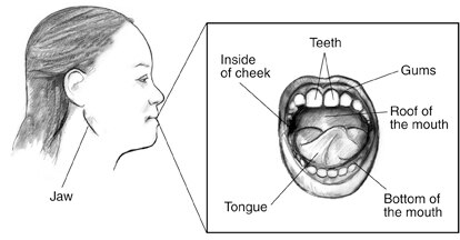 Drawing of a woman's facial profile with the jaw labeled. Inset shows teeth, gums, roof of the mouth, bottom of the mouth, tongue, and inside of cheek.