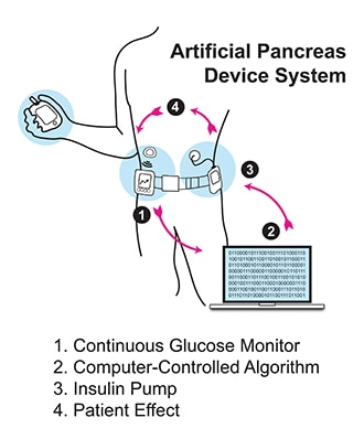 Illustration of a person wearing an artificial pancreas system.