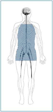 Outline of a body with shaded lines showing the location of nerves affected by autonomic neuropathy. Autonomic nerves are in the heart, stomach, intestines, bladder, sex organs, sweat glands, eyes, and lungs.