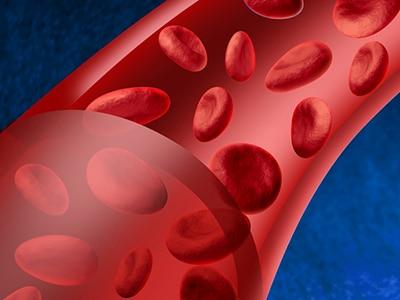 Blood Diseases | NIDDK