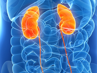 Kidney Disease Niddk