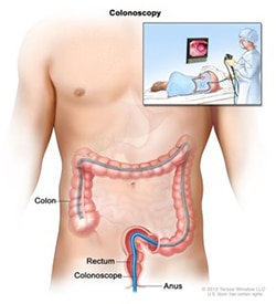 Illustration of a torso and over top of that illustration, an illustration of a doctor conducting a colonoscopy