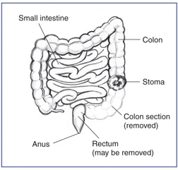Drawing of the small intestine, colon, stoma of the colon, rectum, and anus. Drawing outlines the removed section of the colon.