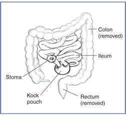 Drawing of the ileum, Kock pouch, and stoma. Drawing outlines the removed colon and removed rectum.