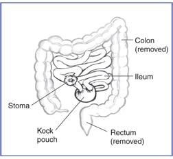 nephrostomy tube care instructions