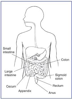 Ulcerative Colitis Niddk