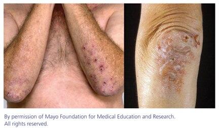 Dermatitis herpetiformis dietary treatment