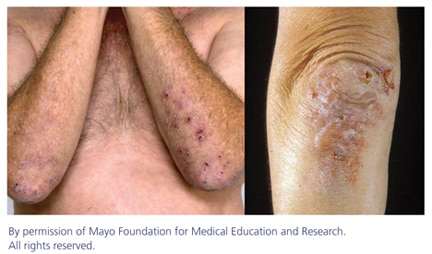 Two photographs of skin lesions caused by dermatitis herpetiformis.