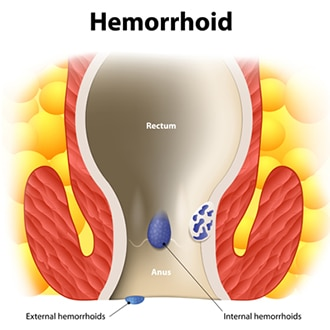 Drawing showing internal and external hemorrhoids in the rectum and anus.