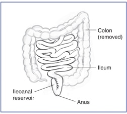 Drawing of the removed colon, and the ileum, ileoanal reservoir, and anus.