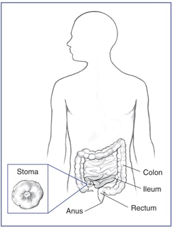 Drawing of the colon, ileum, stoma of the ileum, rectum, and anus within an outline of the human body. Inset shows a detailed drawing of the stoma.