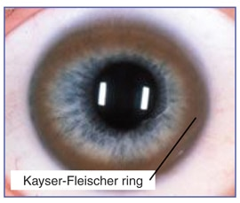 Color photograph of a human eye with Kayser-Fleischer rings.