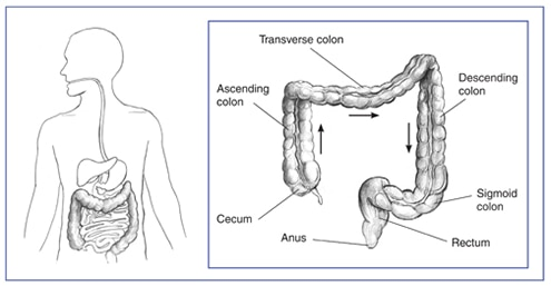Drawing of the lower gastrointestinal tract inside the outline of a man's torso. Inset of the lower gastrointestinal tract with the cecum, ascending colon, transverse colon, descending colon, sigmoid colon, and rectum labeled.