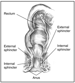 Drawing of the external and internal anal sphincter muscles with the internal sphincter, external sphincter, rectum, and anus labeled.