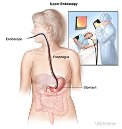 Illustration of an upper GI endoscopy procedure