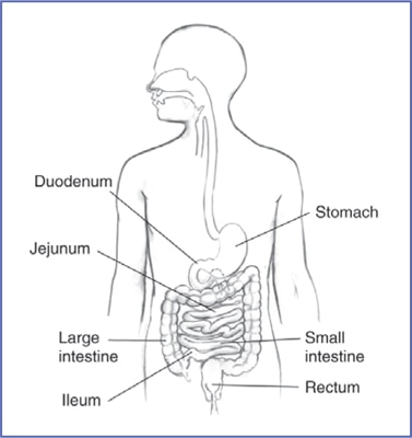 Drawing of the digestive tract within an outline of the top half of a human body. The stomach, duodenum, jejunum, ileum, small