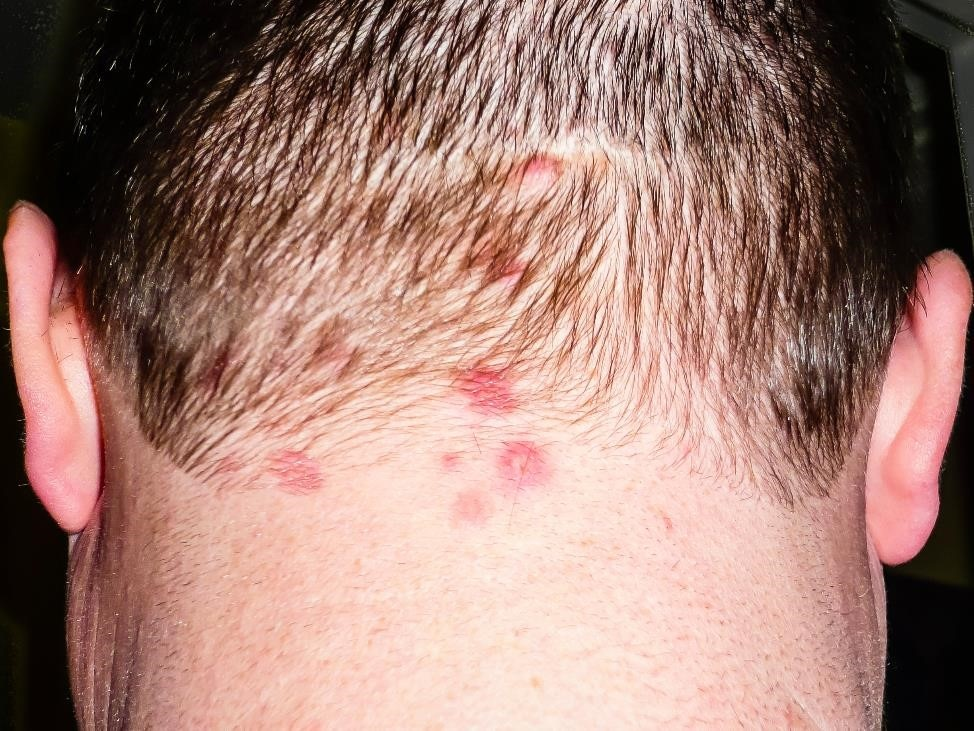 Dermatitis herpetiformis rash on the back of a person's scalp.