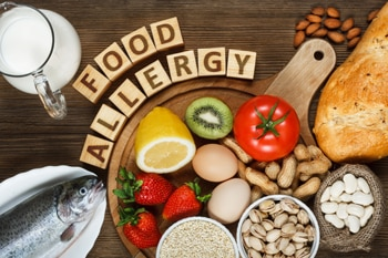 Various foods that may cause food allergies.