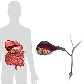 An illustration of a human silhouette with a gallbladder and its surrounding organs. An inset shows the gallbladder with gallstones inside of it and gallstones blocking the bile ducts.
