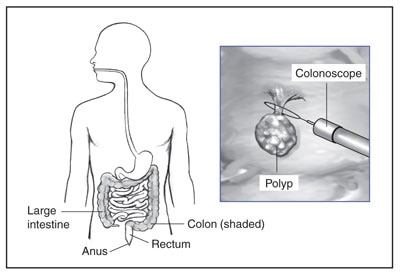 The lower GI tract includes the large intestine, anus, rectum, and colon. Doctors use a colonoscope to remove polyps from the colon.