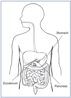 Picture of the digestive tract within an outline of the top half of a human body. The stomach, pancreas, and duodenum are labeled.