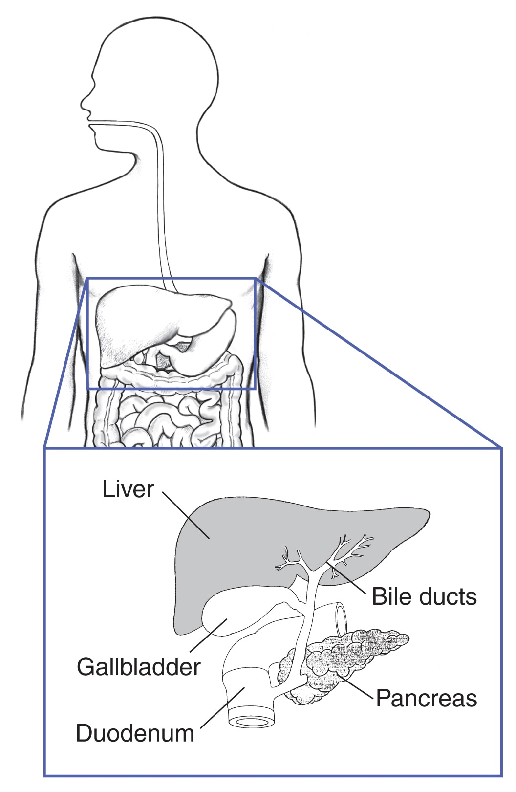Human torso with an inset showing the liver, bile ducts, gallbladder, pancreas, and duodenum.