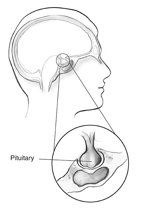 Cross-section of a human head with an inset showing the pituitary gland.