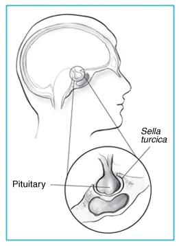 Drawing of the pituitary gland and the sella turcica