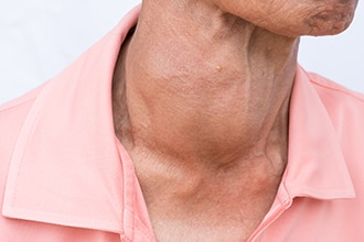 A woman's neck with a goiter.