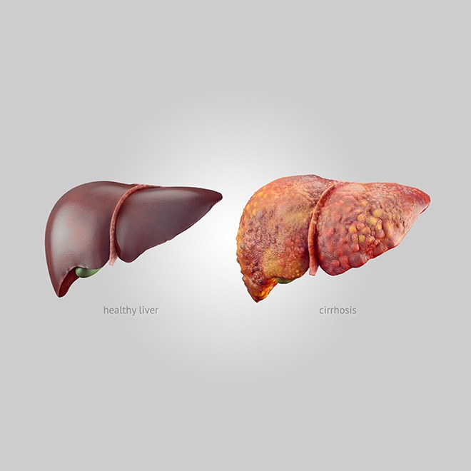 Realistic illustration of comparison of healthy and sick (cirrhosis) human livers