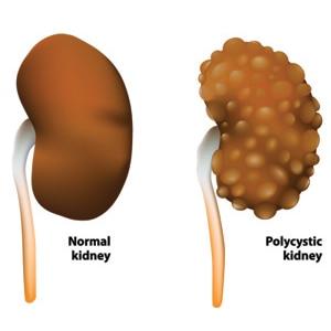 Polycystic Kidney Disease (PKD) | NIDDK