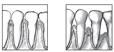 Drawing of a close-up view of a person's healthy teeth and gums.  Drawing of a close-up view of the teeth and gums of a person with periodontitis.