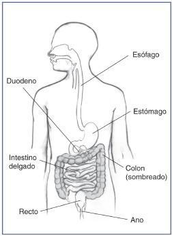 Hemorragia en el tracto digestivo  NIDDK
