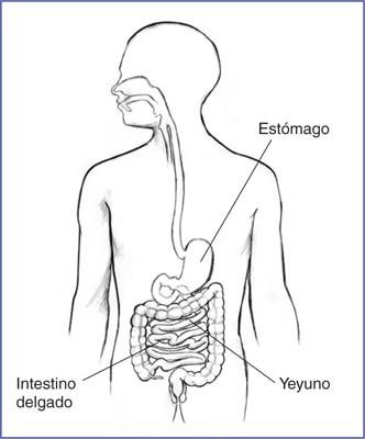 Gastroparesia   NIDDK