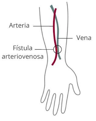 Dibujo de un brazo que muestra una fístula arteriovenosa que conecta una arteria y una vena.