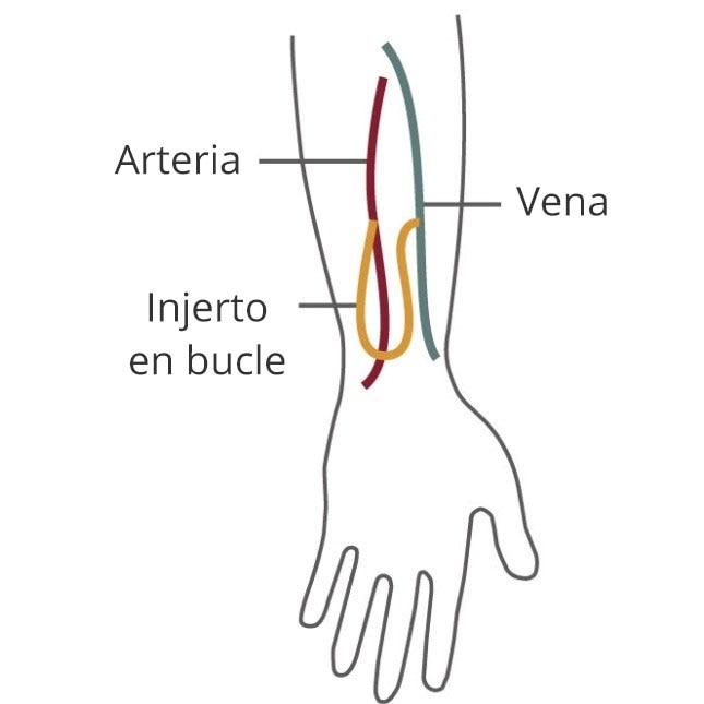 Dibujo de una vena y una arteria en un brazo conectada por un injerto en bucle.