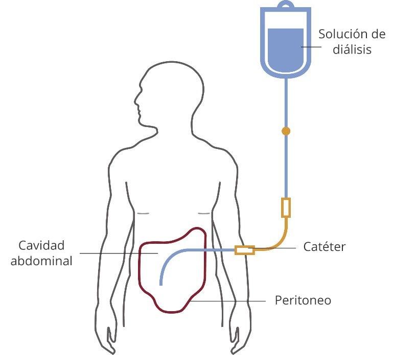 Ilustración de una persona en diálisis peritoneal. La solución de diálisis fluye de una bolsa a un tubo a través de un catéter y a la cavidad abdominal, que está delineada por el peritoneo.